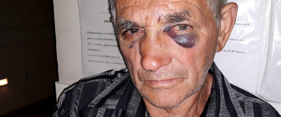 Napredni kovinski opštinski većnik udario nedužnog građanina